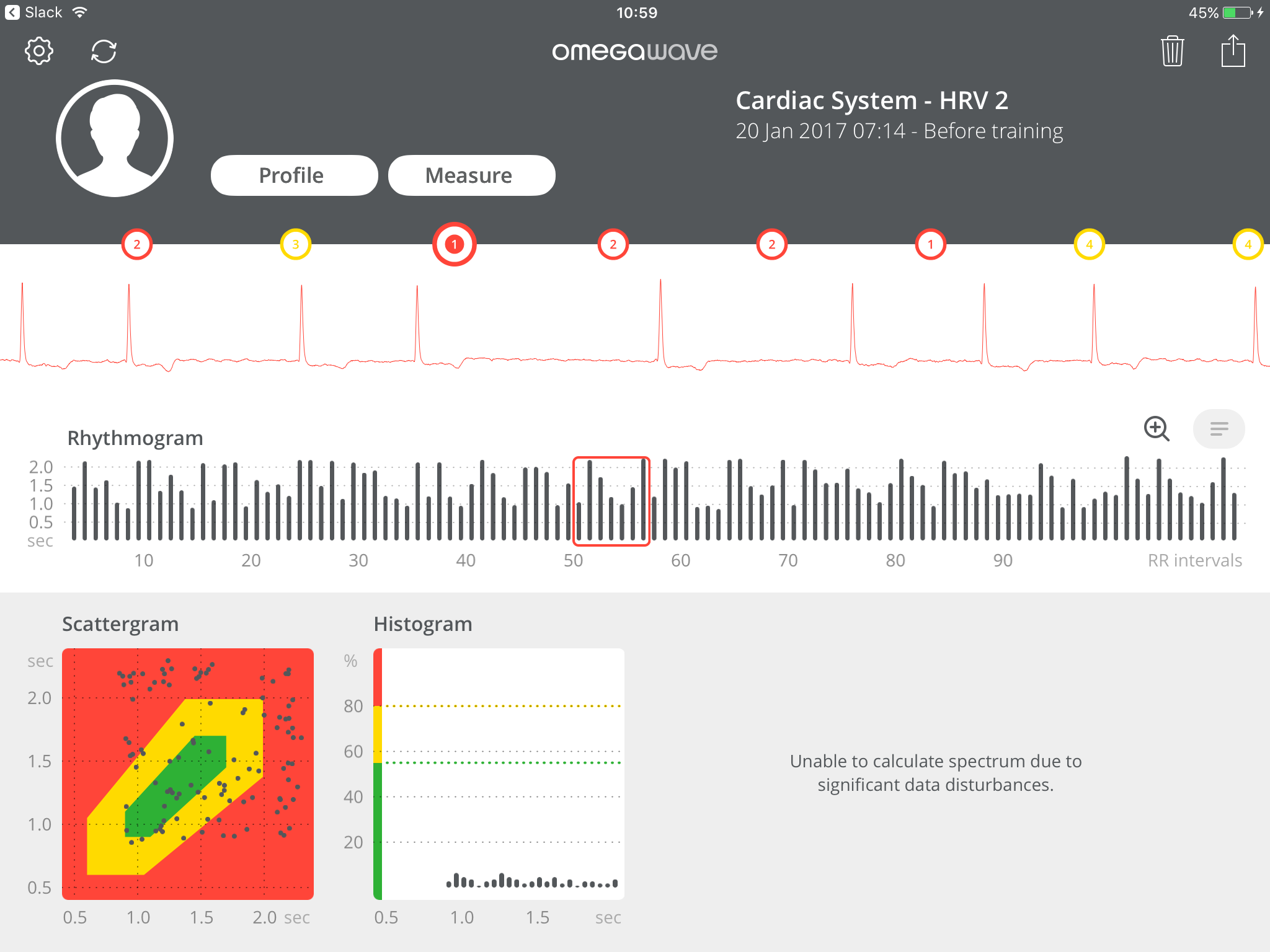 Pre-empting severe cardiac issues with Omegawave – A case study